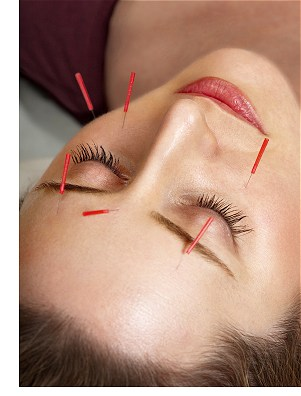 acupuncture facelift Chichester West Sussex